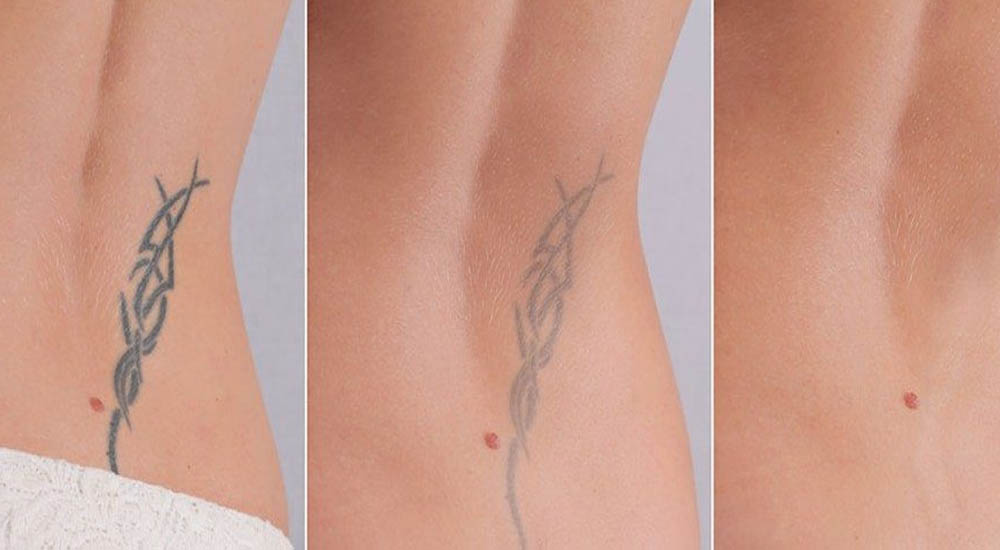 Tattoo removal in the North East